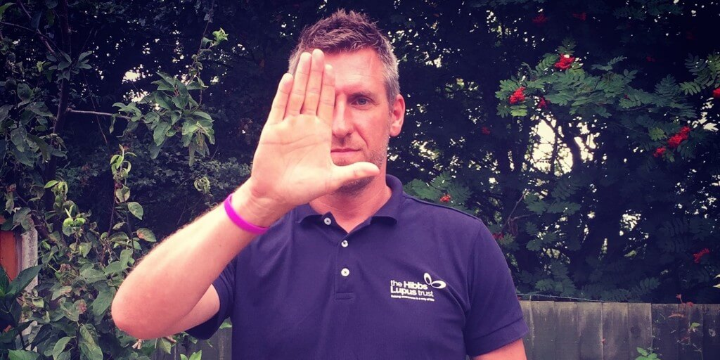 The Hibbs Lupus Trust #LHandSign