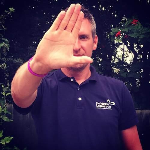 John Hibbs - The Hibbs Lupus Trust