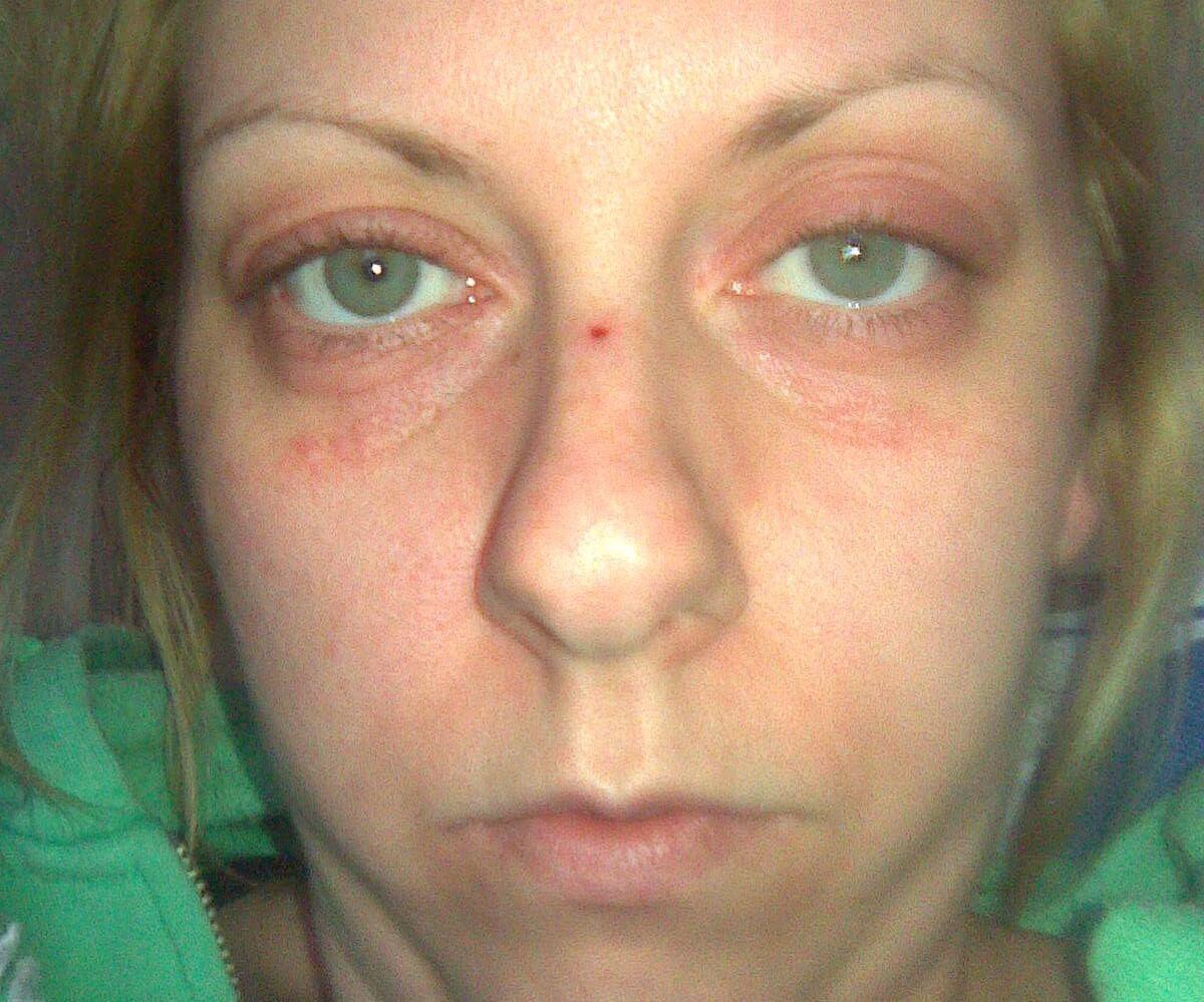 The Hibbs Lupus Trust - Viki Hibbs