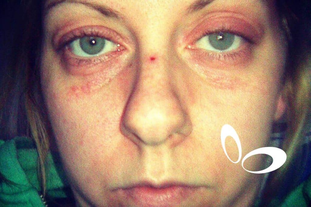 The Hibbs Lupus Trust Anxiety